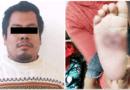 Detienen a sujeto que golpeaba y quemaba con aceite a bebé en Atizapán
